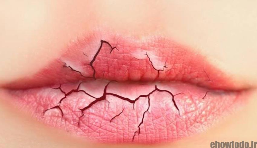 dry-cracked-lip-www.ehowtodo.ir-666
