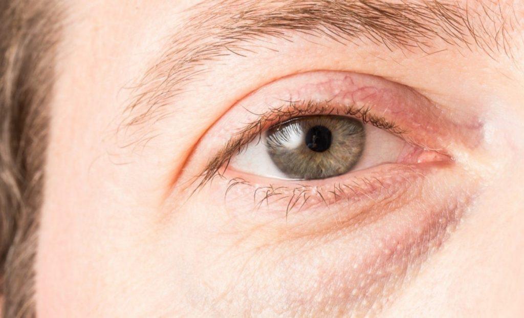 علت ورم دور چشم چیست